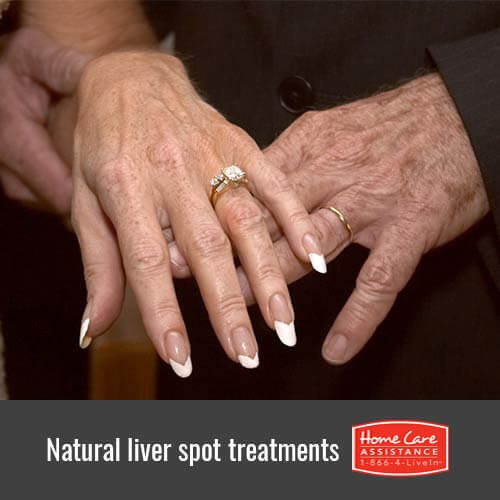 How to Fade Liver Spots at Home in The Grand Strand, SC
