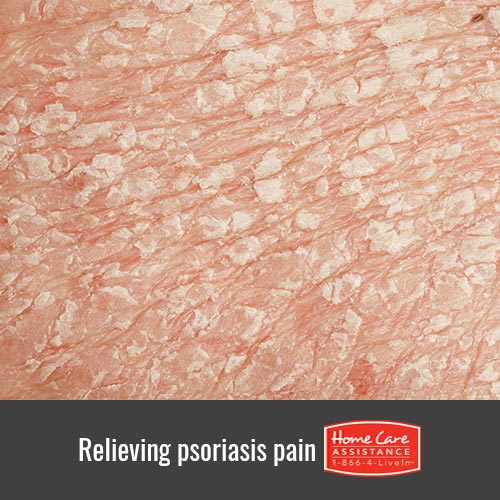 How to Relieve Psoriasis Pain at Home in The Grand Strand, SC