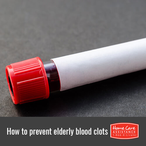 How to Prevent Seniors From Getting Blood Clots in The Grand Strand, SC